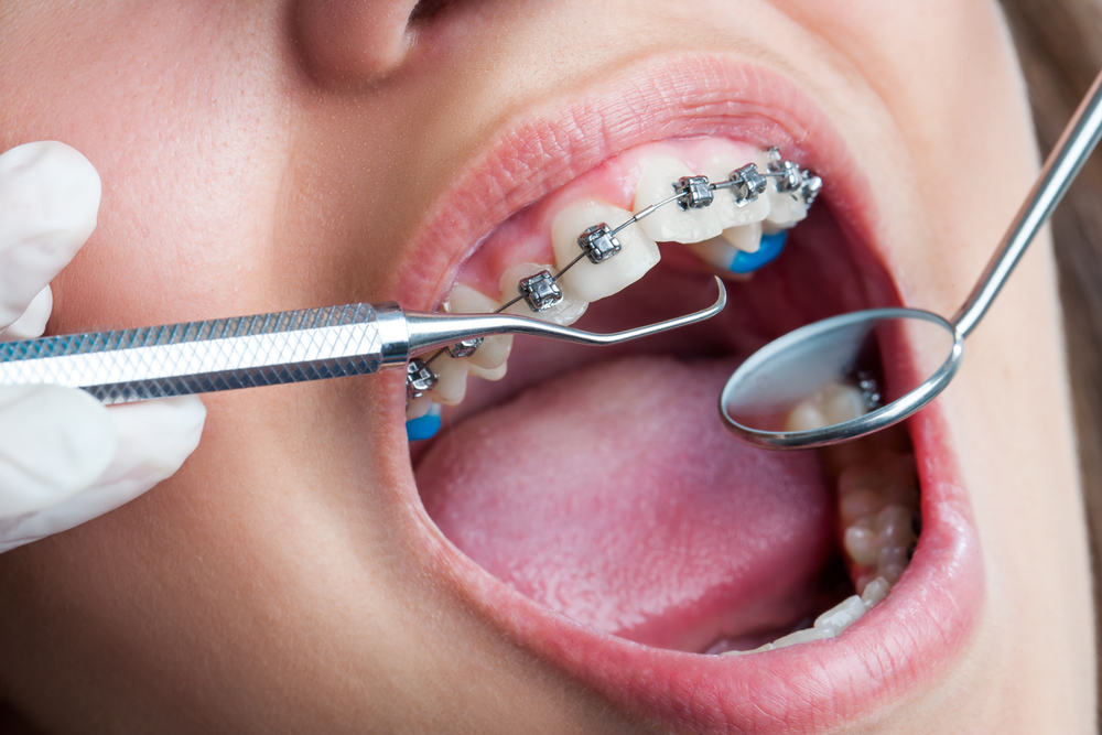 Home - NHS Dentist London - Friendly and Affordable -Fernleigh Dental